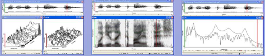 多功能语音分析系统